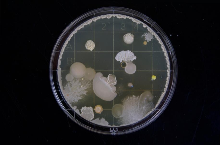 Bacteria Culture