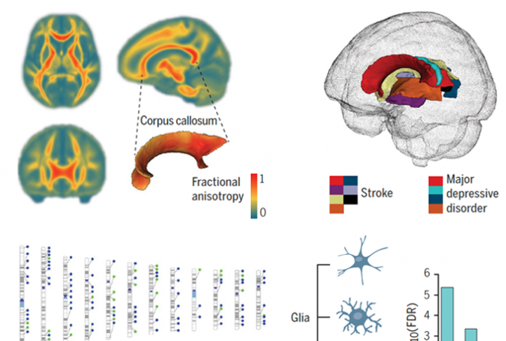This is a graphic identifying genetic variants that influence human brain white matter microstructure.